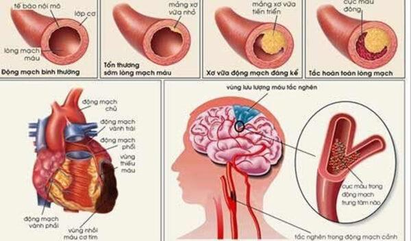 Cách ngừa xơ vữa động mạch